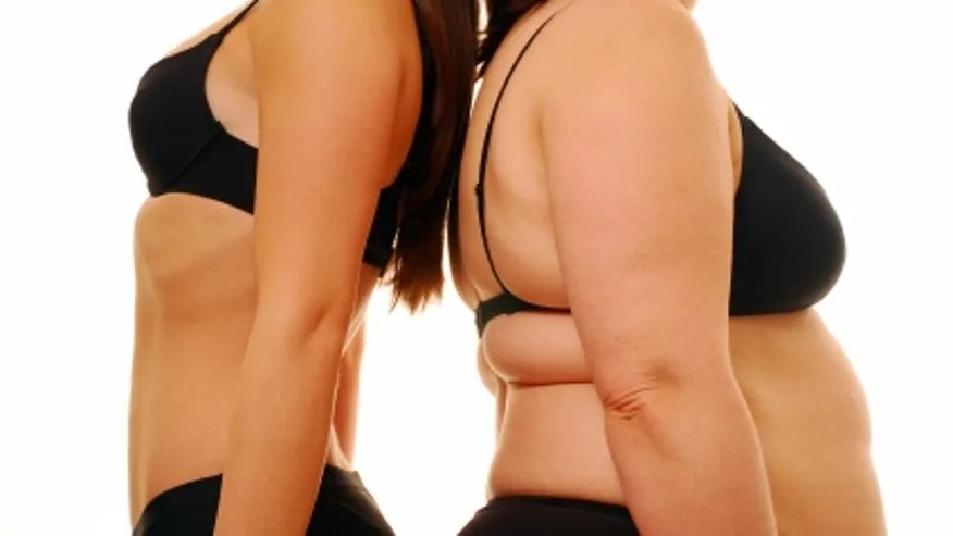 obese _skinny_women.JPG