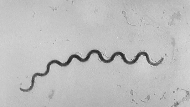 This photomicrograph depicts a Treponema pallidum bacterium, a spirochete 5 to 15 micrometers in length, which is the causative agent of syphilis.