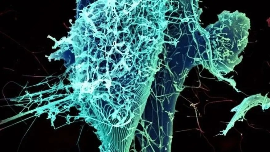 Image result for lungs with ebola