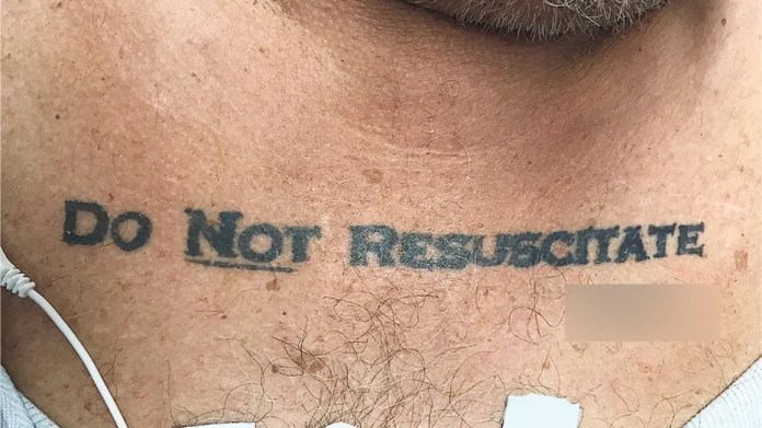 """Doctors faced an ethical dilemma after an elderly man with a """"Do Not Resuscitate"""" tattoo on his chest appeared in their emergency room, unconscious and near-death. (The University of Miami)"""