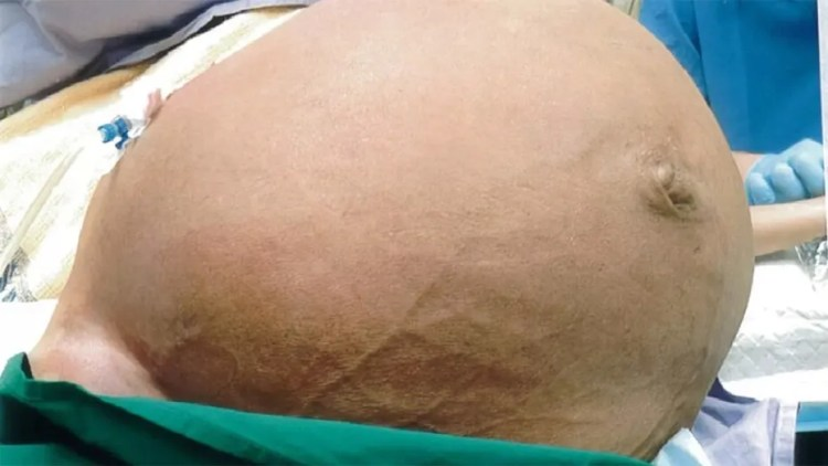 The patient, located in Singapore, may have avoided going to the doctor as the fibroid grew over a fear of surgery.