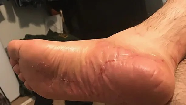A US Border Patrol agent suffered chemical burns through his boots and uniform after he chased down a fugitive in the Tijuana Valley area.