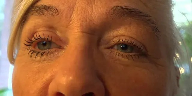 The Belgian woman was recently fitted for a prosthetic eye.