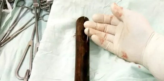 It took surgeons several hours to remove the bamboo spike, which was just inches from his heart.