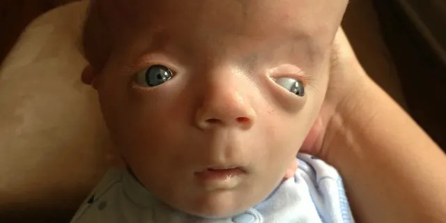 """Doctors have begun referring to his diagnoses as """"Grayson's Syndrome."""""""