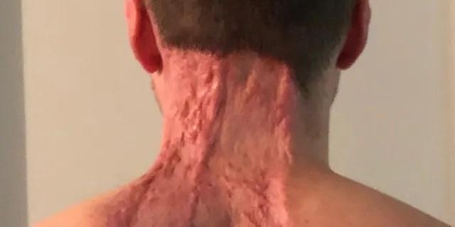 Une large zone de peau a été retirée du dos et du cou de Ryan.