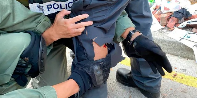 In this photo released by the Hong Kong Police Department, police prepare to remove an arrow from the leg of a fellow officer during a confrontation with protestors at the Hong Kong Polytechnic University in Hong Kong on Sunday.