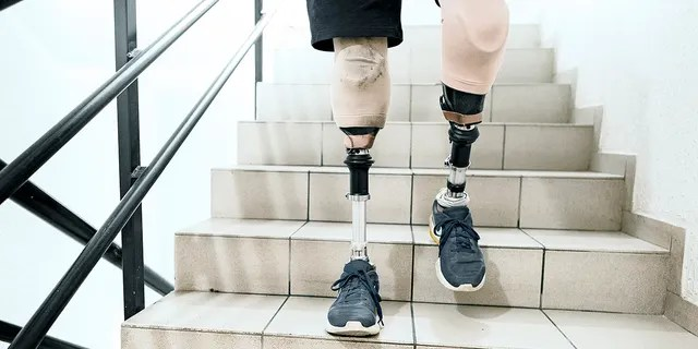 "Brett Winters, a senior at Pacific High School in San Bernardino, California, was born without tibia bones in his legs. As a baby, his mother was told by doctors that Winters could either spend life in a wheelchair or amputate his legs.<br data-cke-eol=""1"" data-recalc-dims="