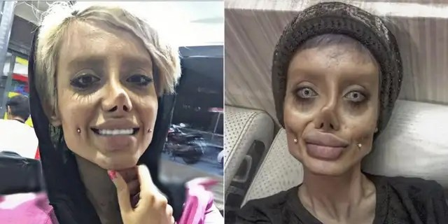 While digital trickery was involved, the dedicated doppelganger also admitted to receiving a nose job, enlarged mouth and liposuction.