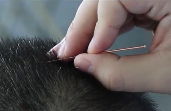 acupuncture calgary