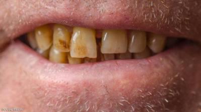 """يريد الجميع الحصول على ابتسامة بيضاء لامعة، لذلك يلجؤون إلى مجموعة من الوسائل لإزالة جير أسنانهم، من بينها الليزر أو شرائط التبييض، التي غالبا ما تكون لها انعكاسات سلبية. وقد لا يعرف الكثر منا أن بإمكانهم إزالة الجير بوسائل طبيعية تمكنهم من الاستغناء عن المبيضات الصناعية، بحسب موقع """"نو بريك داي"""": بيكربونات الصوديوم تعد بيكربونات الصوديوم من المركبات الطبيعية، التي لها """"خاصية كاشطة"""" مما يجعلها أحد الخيارات، التي يمكن استخدامها لإزالة الجير، بالإضافة إلى أنها تقوم بقتل البكتيريا الموجودة في الأسنان، والتي تعد أحد أسباب تغير لون الأسنان بسبب خاصيتها القلوية القوية القاتلة للبكتيريا. ولا ينصح باستخدامها لأكثر من 3 أيام في الأسبوع لما قد تسببه من حساسية أو التهاب في الأسنان. خل التفاح له القدرة على إزالة الجير بسبب احتوائه على حمض الخليّك """"Acetic acid"""" وهو من الأحماض القوية، التي تقضي على البكتيريا الموجودة في الأسنان وله خاصية كاشطة أيضا. ويتم تخفيف الخل في كمية من الماء والمضمضة فيها لعدة دقائق، ثم شطف الفم بالماء بعد الانتهاء من المضمضة. ولا ينصح باستخدام خل التفاح لتنظيف الأسنان بكثرة لأنه قد يسبب تآكل في مينا الأسنان، لذلك يجب الاعتدال في استخدامه. الزيت يعد الزيت أحد الوسائل الفعالة في تنظيف الأسنان، وهو من الطرق الهندية التقليدية في تبييض الأسنان حيث يتم دهن الأسنان بالزيت لقدرته على قتل البكتيريا وحل المواد الدهنية. ولا يهم نوع الزيت المستخدم ولكن من الزيوت المفضلة في هذه الطريقة زيت جوز الهند بسبب طعمه المستساغ واحتوائه على كميات كبيرة من حمض اللوريك """"Lauric acid"""" المعروف بخصائصه المهدئة والمضادة للالتهابات والمضادة للبكتيريا. الفحم ويعتبر الفحم أيضا أحد وسائل إزالة الجير الطبيعة، فله قدرة كبيرة على الامتصاص، لذلك من الممكن استخدامه لحل المواد المسببة لتغيير لون الأسنان بطحنه ووضعه على فرشاة الأسنان، يأتي الفحم على شكل بودرة، ويتميز بقدرته على إزالة آثار التدخين من الأسنان. قشور الفواكه يرى كثيرون أن استخدام قشور الفواكه كالبرتقال والليمون والتفاح والموز قد يكون له آثار قوية في إزالة جير الأسنان. كما أن البرتقال غني بفيتامين سي، ويعمل على محاربة البكتيريا في الفم. الطماطم والفراولة تحتوي الطماطم والفراولة على فيتامين سي، وتعمل الطماطم والفراولة على تبييض الأسنان"""