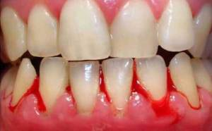 WHAT IS GUM DISEASE AND HOW TO PREVENT IT ?