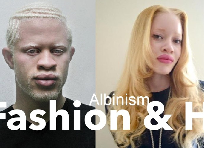 Albinism and Respect for persons with Albinism