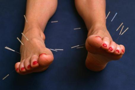 Image of acupuncture needles in the feet to treat plantar fasciitis and any foot pain.