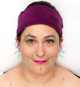 Image shows face with acupuncture needles inserted.
