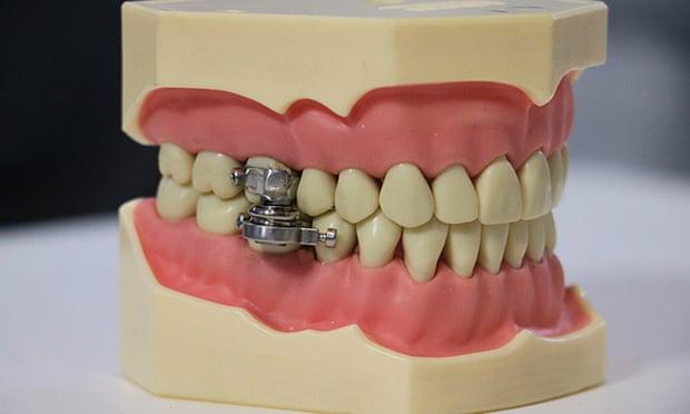 Dental slim diet control