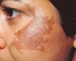 Home remedies for Melasma
