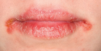 Home remedies for Angular cheilitis