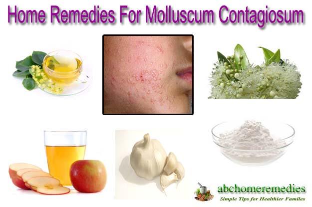 Home Remedies For Molluscum Contagiosum