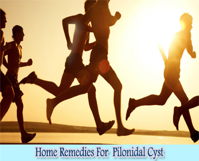 Exercise : Home Remedies For Pilonidal Cyst