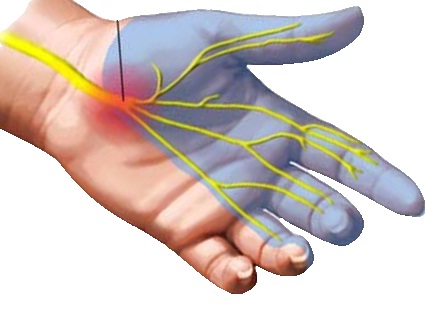 10 Remarkable Home Remedies for Carpal Tunnel Syndrome (CTS)