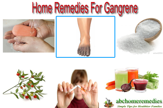 Home Remedies For Gangrene