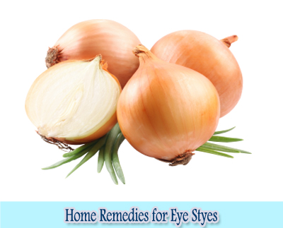 Onion : Home Remedies for Eye Styes