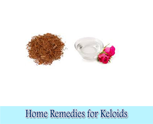 Sandalwood and Rose Water : Home Remedies for Keloids