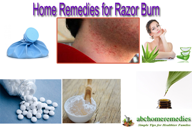 Home Remedies for Razor Burn