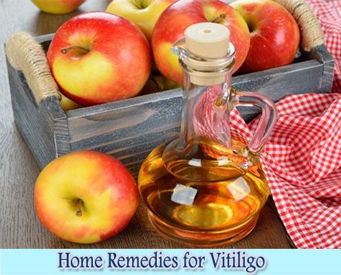 Apple Cider Vinegar : Home Remedies for Vitiligo