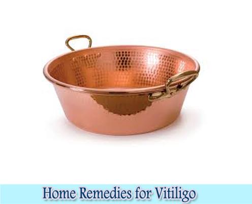 Copper : Home Remedies for Vitiligo