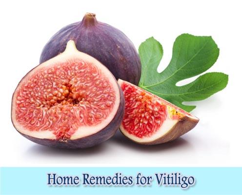 Figs : Home Remedies for Vitiligo
