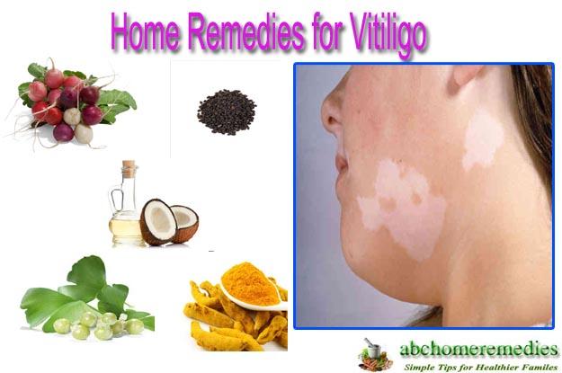 Home Remedies for Vitiligo