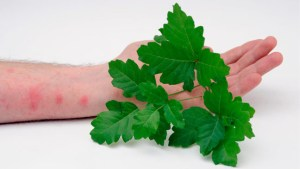 12 Trendy Home Remedies for Poison Ivy