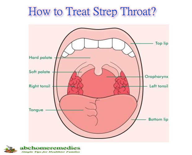 How to Treat Strep Throat