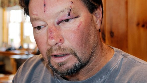 ap roger mundell dm 130108 wblog Mass. Pair Attacked By Bobcat in Garage