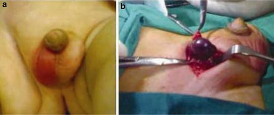 testicular torsion newborn. a330006_1_en_12_fig2_html.jpg testicular torsion newborn