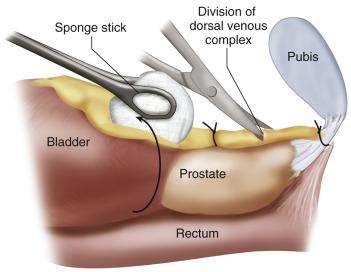 Complications Of Radical Retropubic Prostatectomy Abdominal Key