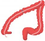 Challenge of the Transverse Colon Tumor: Laparoscopic Techniques and Strategies
