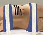 Renal Extirpative Surgery