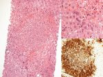 Role of Histology Following Pediatric Liver Transplantation