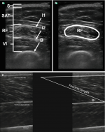 of Sarcopenia: The Utility of Ultrasound, Bioelectrical Impedance Analysis and Single-Slice Cross-Sectional Imaging