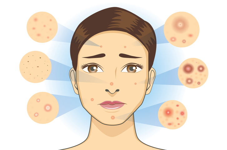 Tips to Reduce Redness from breakouts