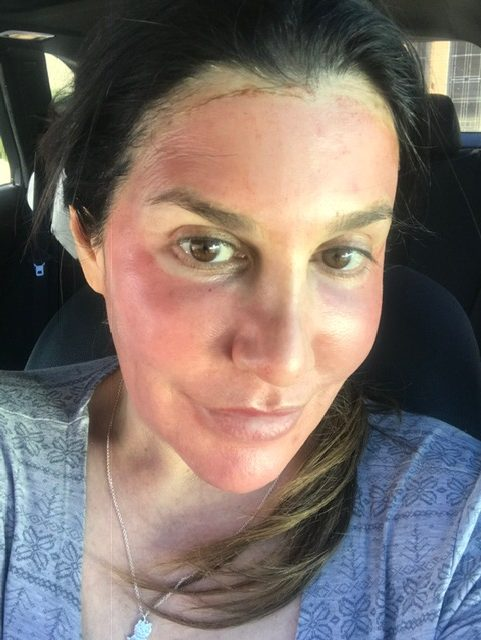 red skin after microneedling PRP