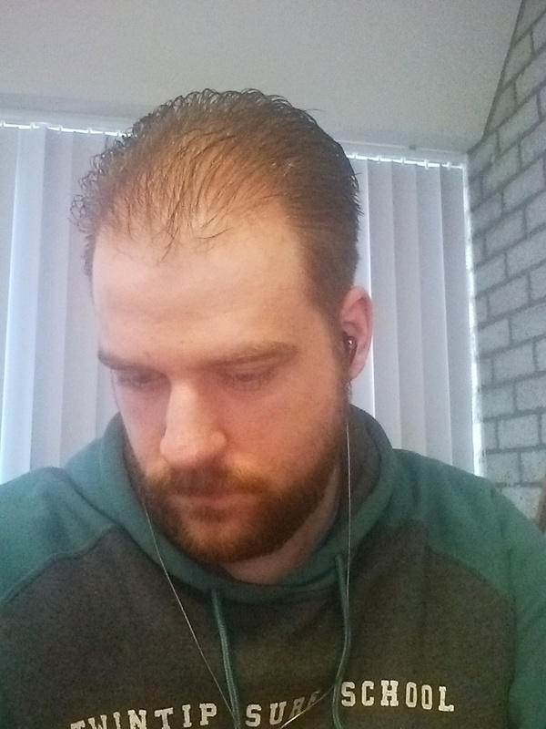 Who Else Has Thinning Hair Page 3 NeoGAF