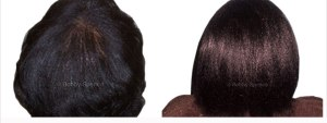 bobby-spence-minoxidil-before-and-after-black-hair-loss-3