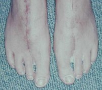 18-01-09 both feet minus 2nd toes