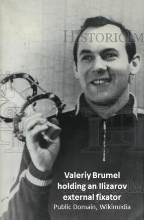 18-02-06 Valeriy Brumel holding Ilizarov ex fix
