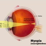 Eye Exercises for Myopia