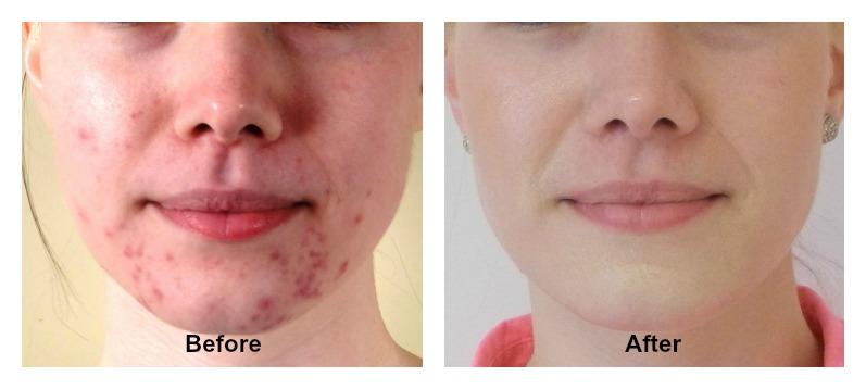 Fresh Face Cream Results